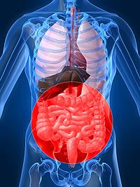 O Crohnovej chorobe sa hovorí aj ako o požiari v črevách